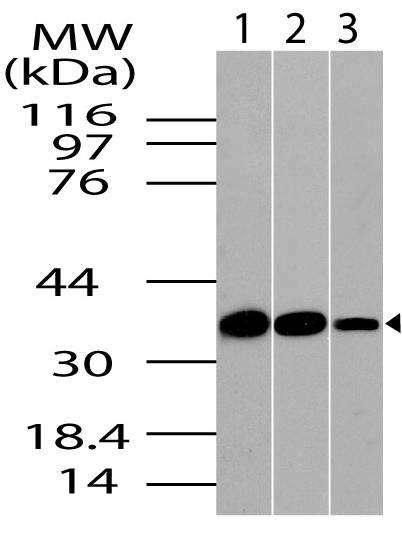 Polyclonal Antibody to CLIM1/PDLIM1