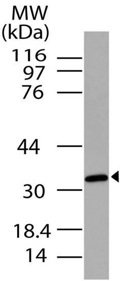Polyclonal Antibody to C5L2/GPCR77