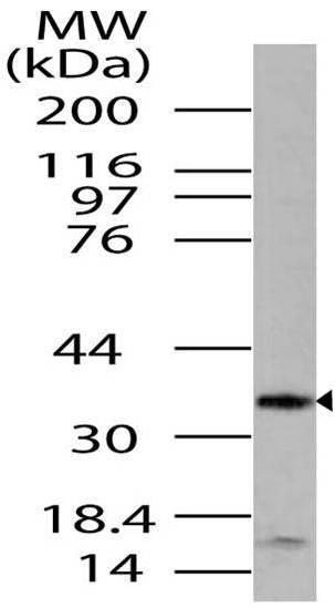 Polyclonal Antibody to LST8/GBL