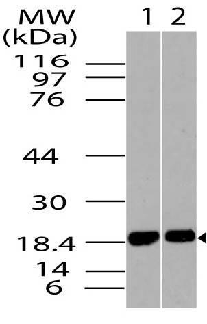 Polyclonal Antibody to ACP1 isoform B