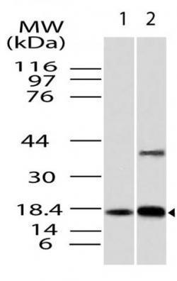 Polyclonal Antibody to ACP1