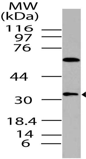 Polyclonal Antibody to DUSP13, SKRP4