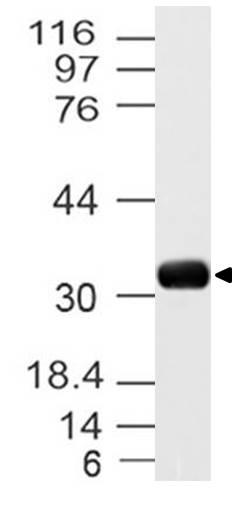 Polyclonal Antibody to UCP3