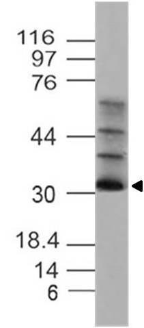Polyclonal Antibody to UCP4