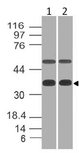 Polyclonal Antibody to eIF3G