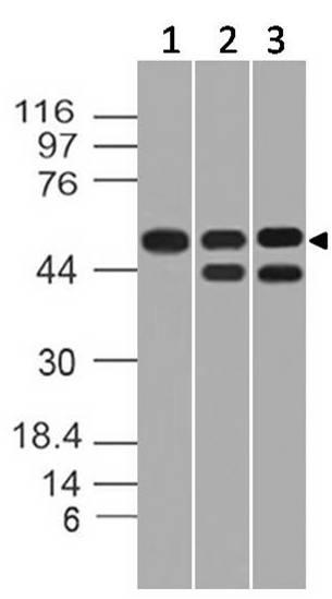 Polyclonal Antibody to TIP60