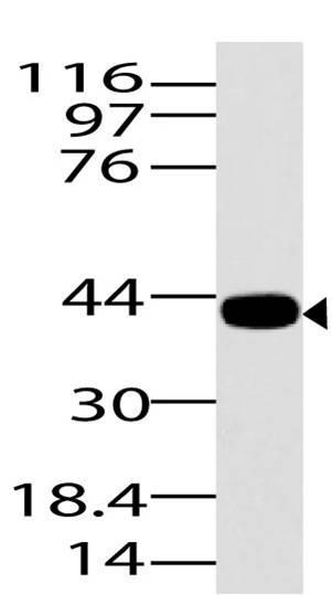 Polyclonal Antibody to ASAP3
