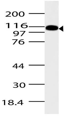 Polyclonal Antibody to ASAP2