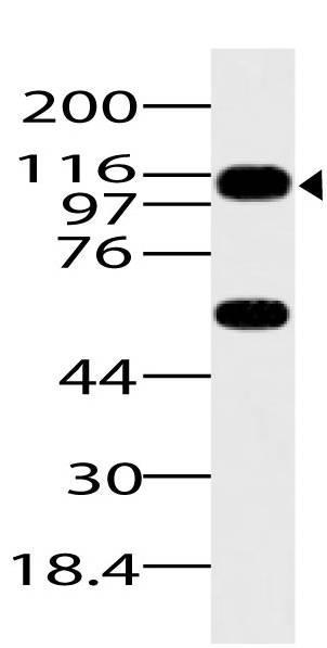 Polyclonal Antibody to ASAP1
