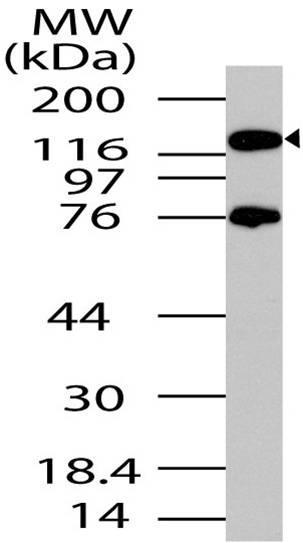 Polyclonal Antibody to PER2