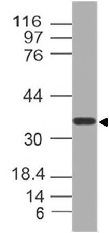 Polyclonal Antibody to NUP35