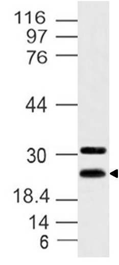 Polyclonal Antibody to Hes7