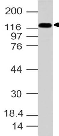 Polyclonal Antibody to AP3 Delta