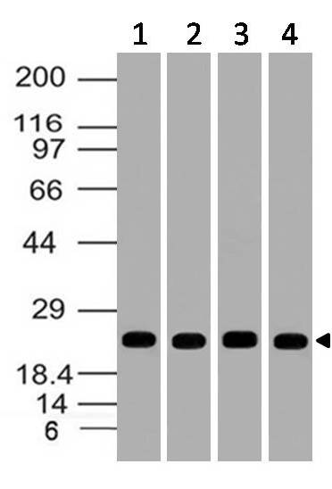 Polyclonal Antibody to Uch-L1