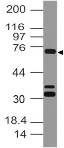 Polyclonal Antibody to SENP1