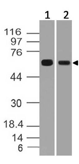 Polyclonal Antibody to h RGS11
