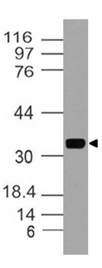 Polyclonal Antibody to MYADM