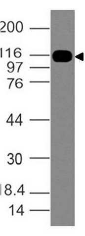 Polyclonal Antibody to SMO