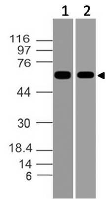 Polyclonal Antibody to Asb-2