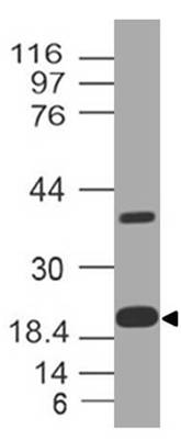 Polyclonal Antibody to Ferritin Light Chain