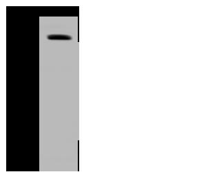 Polyclonal Antibody to PLOD1