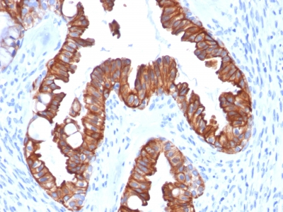 Recombinant Mouse Monoclonal Antibody to Cytokeratin 7 (Glandular and Transitional Epithelial Marker)(Clone : rOV-TL12/30)
