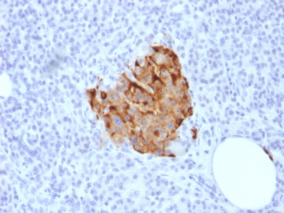 Recombinant Rabbit Monoclonal Antibody to Chromogranin A / CHGA (Neuroendocrine Marker)(Clone : CHGA/1773R)