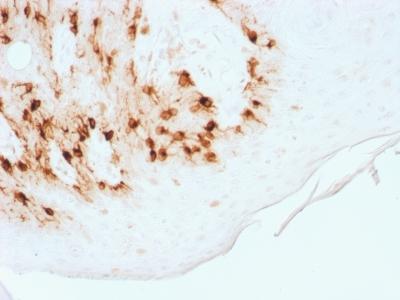 Recombinant Rabbit Monoclonal Antibody to MART-1 / Melan-A / MLANA (Melanoma Marker)(Clone : MLANA/1761R)