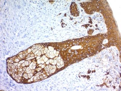 Recombinant Rabbit Monoclonal Antibody to  Cytokeratin, Basic (Type II or HMW) (Epithelial Marker) (Clone : KRTH/1576R)