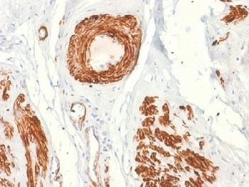Anti-Caldesmon, HMW (h-Caldesmon) (Smooth Muscle Marker) Recombinant Mouse Monoclonal Antibody (Clone:rCALD1/820)