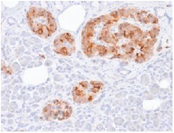 Anti-Chromogranin A / CHGa (Neuroendocrine Marker) Recombinant Mouse Monoclonal Antibody (Clone:rCHGA/777)