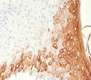 Anti-Cytokeratin 10 (Suprabasal Epithelial Marker) Recombinant Mouse Monoclonal Antibody (Clone:rKRT10/1275)