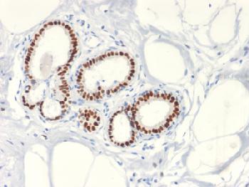 Anti-Estrogen Receptor, alpha (Marker of Estrogen Dependence) Recombinant Rabbit Monoclonal Antibody (Clone:ESR1/2299R)