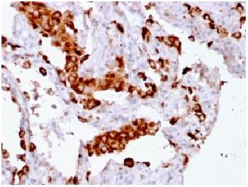 Anti-Napsin A (Lung Adenocarcinoma Marker) Recombinant Mouse Monoclonal Antibody (Clone:rNAPSA/1239)