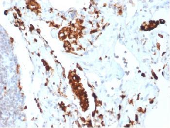 Anti-Napsin A (Lung Adenocarcinoma Marker) Recombinant Rabbit Monoclonal Antibody (Clone:NAPSA/1865R)