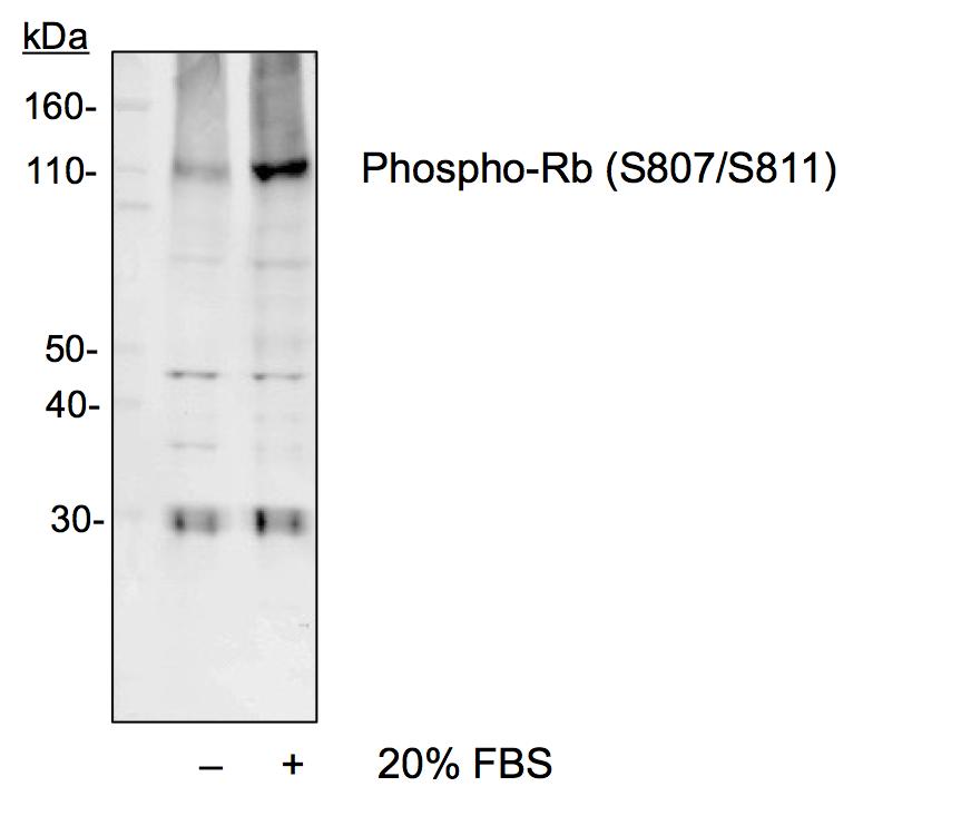 Phospho-Rb (Ser807/811) (Clone: D9) rabbit mAb
