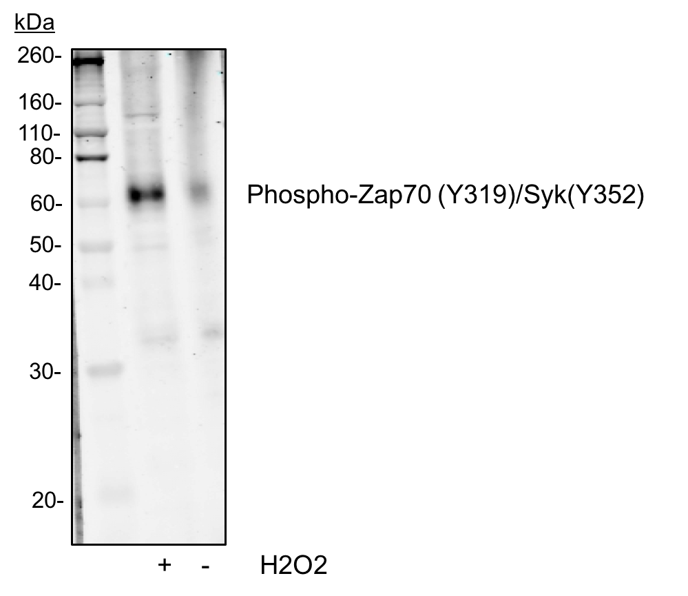 Phospho-Zap70 (Tyr319)/Syk (Tyr352) (Clone: A11) rabbit mAb