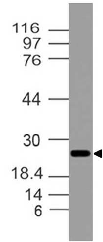 Polyclonal antibody to ASC/TMS1