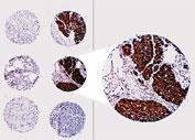 Polyclonal antibody to Bcl-2