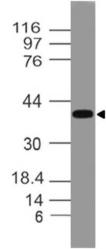 Polyclonal antibody to DEDD2 (DED4)