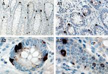 Polyclonal antibody to ITRAF