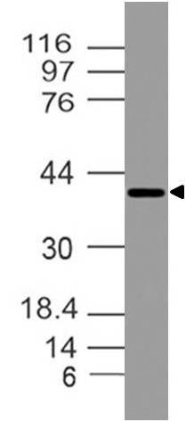 Polyclonal antibody to NIDD/ZDHHC23