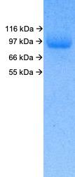 SARS-CoV-2 (2019-nCoV) Spike S1 (D614G) His Tag Protein