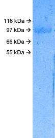 SARS-CoV-2 (2019-nCoV) Spike S1 (N439K) His Tag Protein