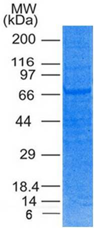 Recombinant Human TRIM29 His Tag protein