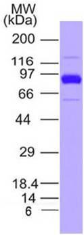 SARS-CoV-2 (2019-nCoV) Spike S1 South African Mutant (K417N / E484K / N501Y) His Tag Protein