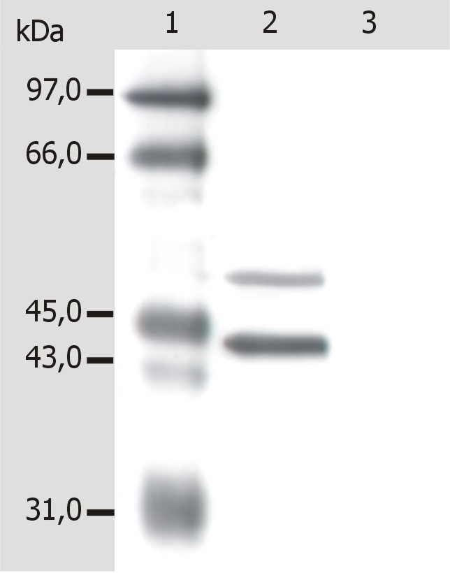 Anti-Cytokeratin 5+18 Monoclonal Antibody (Clone:C-50)
