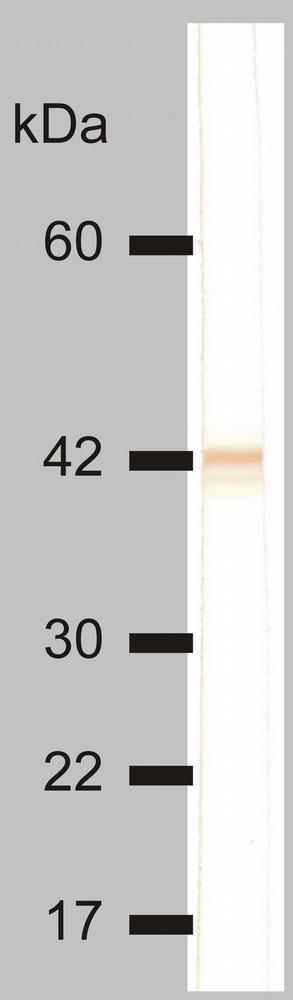 Anti-Cytokeratin 18 Monoclonal Antibody (Clone:DC-10)