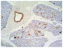 Anti-Cytokeratin 7+17 Monoclonal Antibody (Clone:C-46)