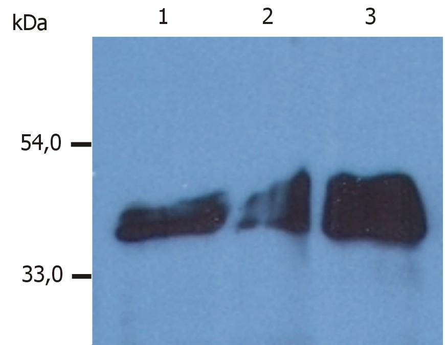 Anti-Cytokeratin 18 Monoclonal Antibody (Clone:DA-7)